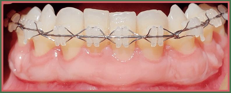 Injerto gingivial libre en tratamiento multidisciplinario CasoClinico 5