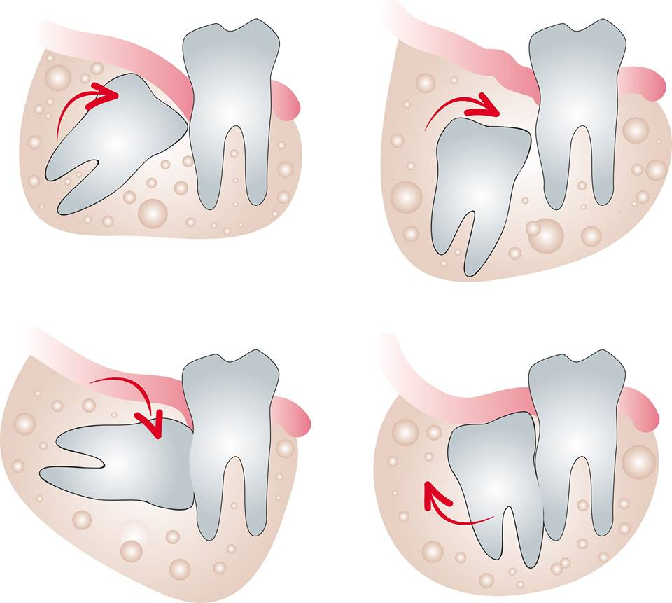 Chirurgie orala Sector 3 Piata Muncii, Dristor, Titan,  - Baba Novac