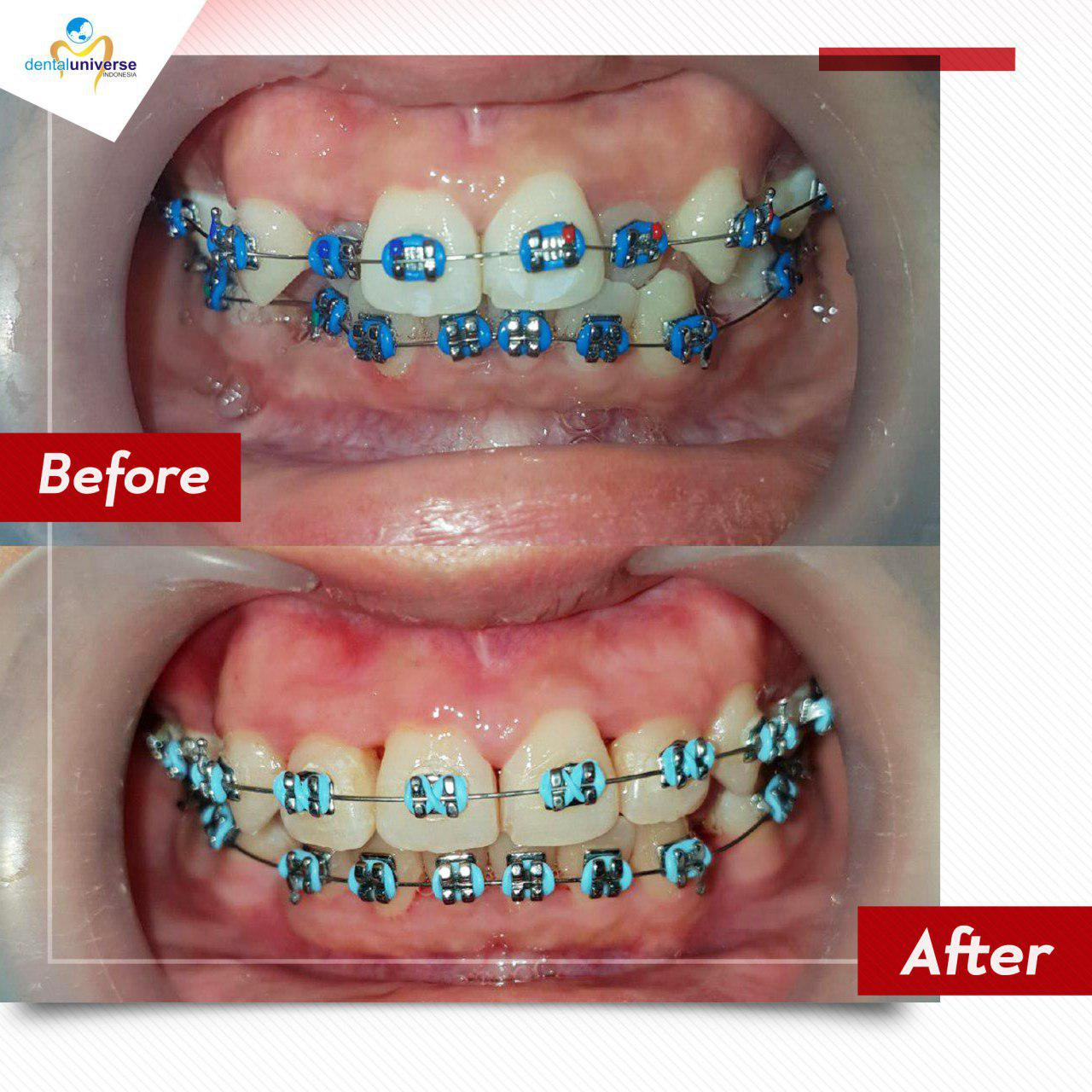 Before After Behel 6 bulan - Dental Universe Indonesia