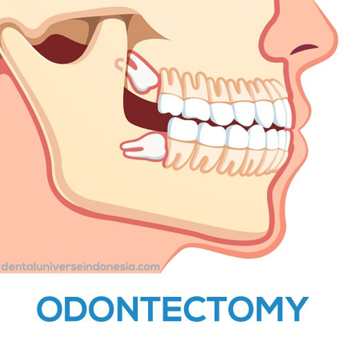 odontectomy treatment - dental universe indonesia