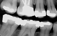 Ved en tannlegeundersøkelse kan røntgen avdekke fremtidige plager i god tid slik at vi får behandlet og iverksatt nødvendige tiltak før det blir et problem.