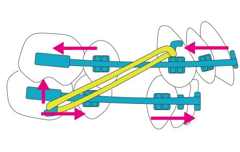 Ⅱ級ゴムの作用機序