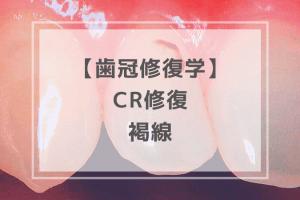 歯冠修復学:CR修復 褐線
