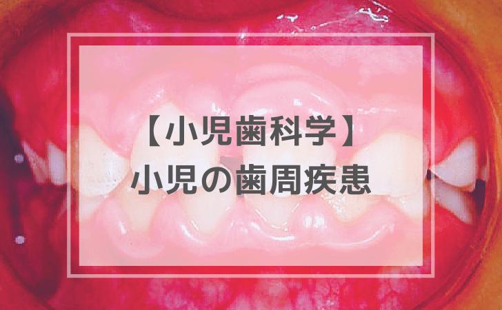 小児の歯周疾患