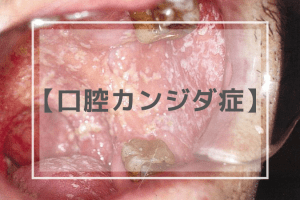 口腔カンジダ症