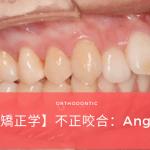不正咬合の分類 Angle