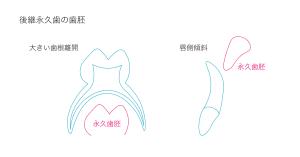 後継永久歯歯胚の存在
