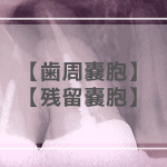 歯周嚢胞・残留嚢胞