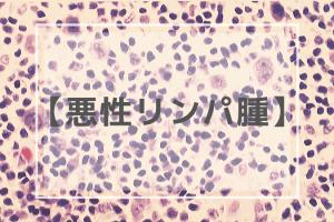悪性リンパ腫