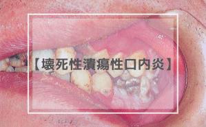 壊死性潰瘍性口内炎