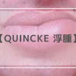 Quincke 浮腫