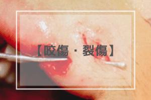 咬傷・裂傷