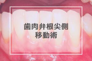 歯肉弁根尖側移動術