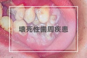 壊死性歯周疾患