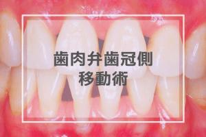 歯肉弁歯冠側移動術