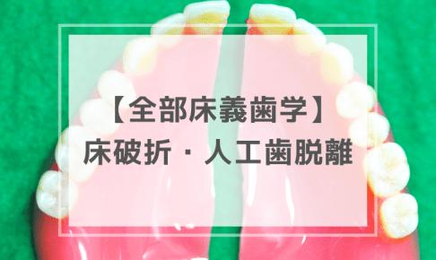 全部床義歯学・術後管理 〜 床の破折・人工歯の脱離