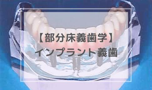 部分床義歯学:インプラント義歯