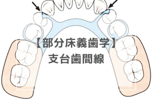 部分床義歯学:支台歯間線