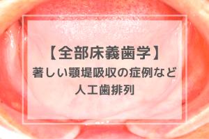 全部床義歯学:人工歯排列