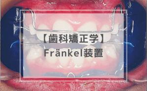 歯科矯正学:Fränkel装置