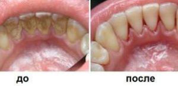 Ультразвуковое отбеливание зубов: плюсы и минусы, цены и ...
