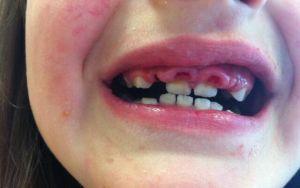 Полное или частичное отсутствие зубов как называется