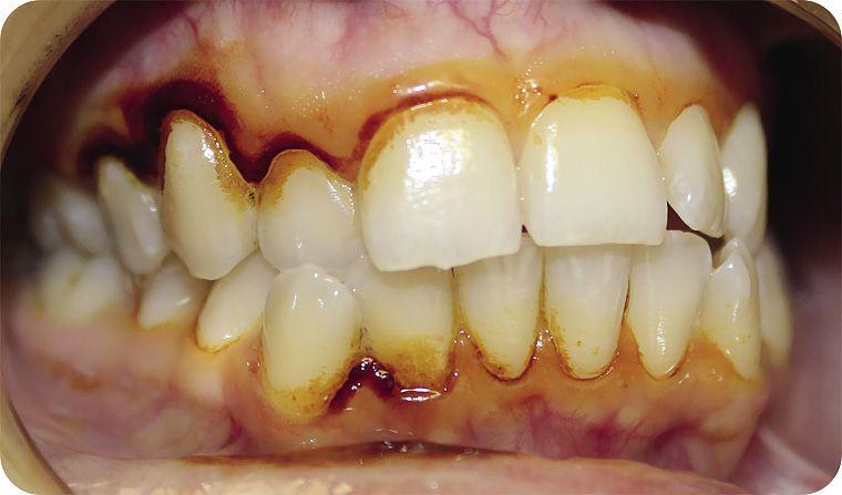 Проба шиллера в стоматологии. Функциональные пробы