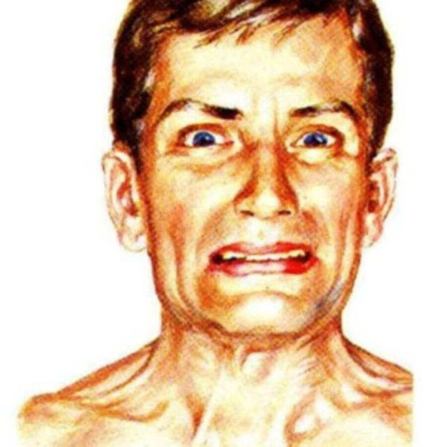 Тризм — болезненный спазм жевательных мышц челюсти. Сводит челюсти (спазмы мышц): что это за симптомы и что делать