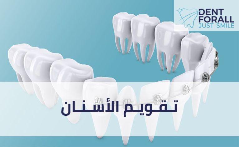 ماهو تقويم الأسنان وما أنواعه ومتى يلزم تركيبه