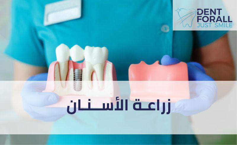 ماهي زراعة الأسنان ومم تتكون زرعة الأسنان