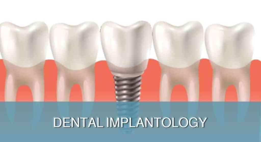 Dental Implantology - DENT FOR ALL