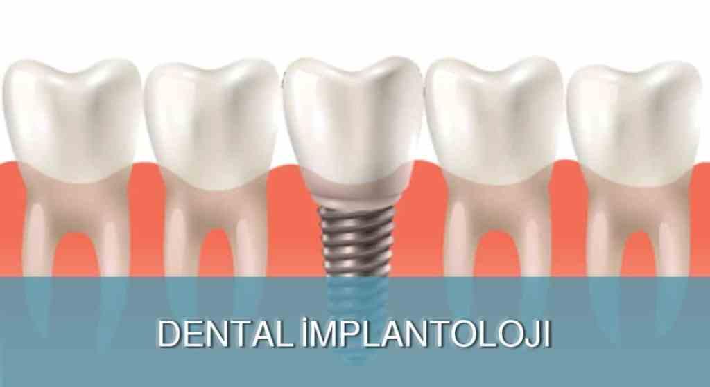 Dental İmplantoloji - DENT FOR ALL