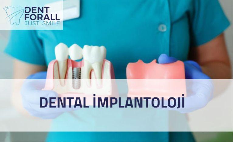 Diş implantolojisi nedir ve ne yapılır