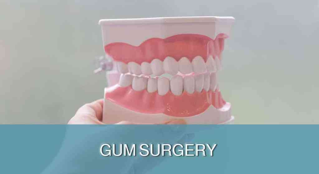 Gums Cosmetic Surgery
