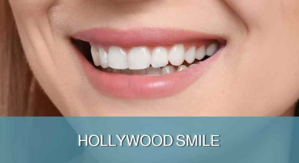 HOLLYWOOD SMILE - DENT FOR ALL
