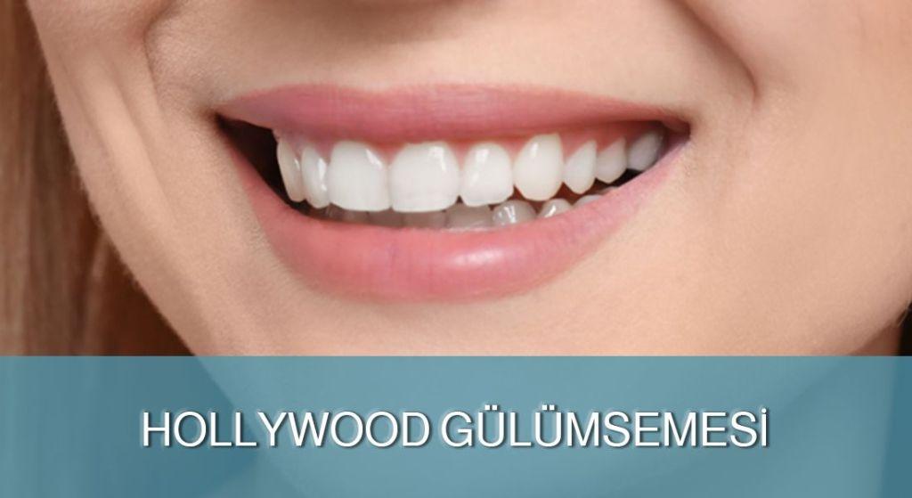Hollywood Gülümsemesi