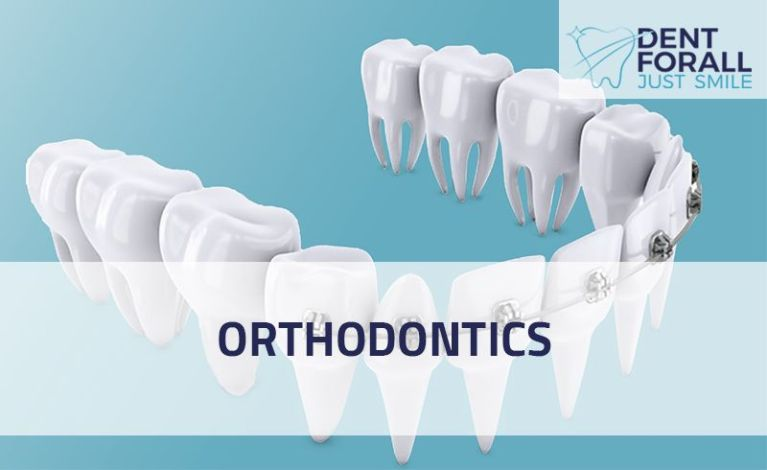 What is orthodontics, its types and when to use it