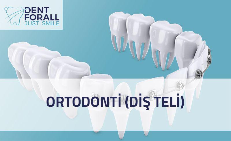 Ortodonti nedir, çeşitleri ve ne zaman kullanılacağı