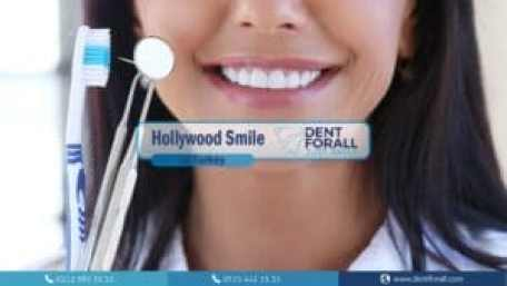 Hollywood smile prices in turkey