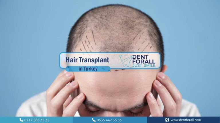 Hair transplant and some techniques that are used in that