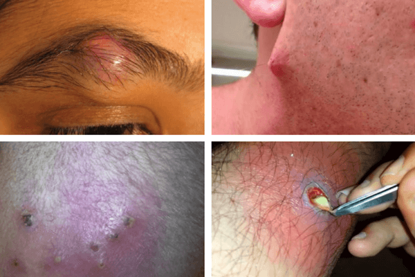 how to treat ingrown hair cyst on neck hairstlyorg