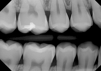 DentiMax-Dental-Xray-Gallery-20-orig
