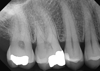 DentiMax-Dental-Xray-Gallery-26-orig
