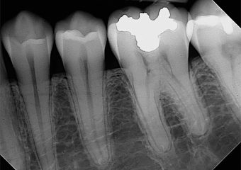 Dental XRay - Bitewing