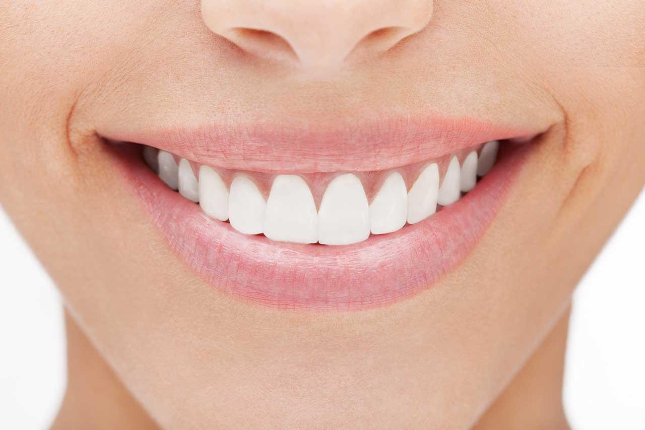 Branqueamento Dentario Dentisaude