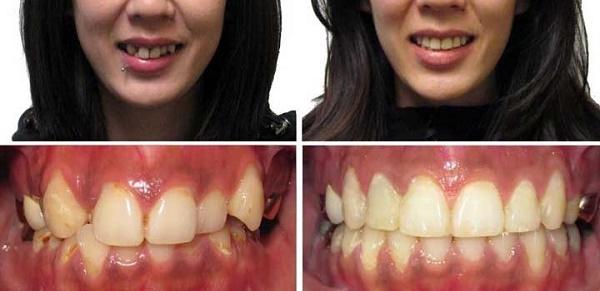 Как изменяется форма лица после ношения брекет-систем