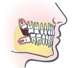 dentist3-wisdom-tooth-removal