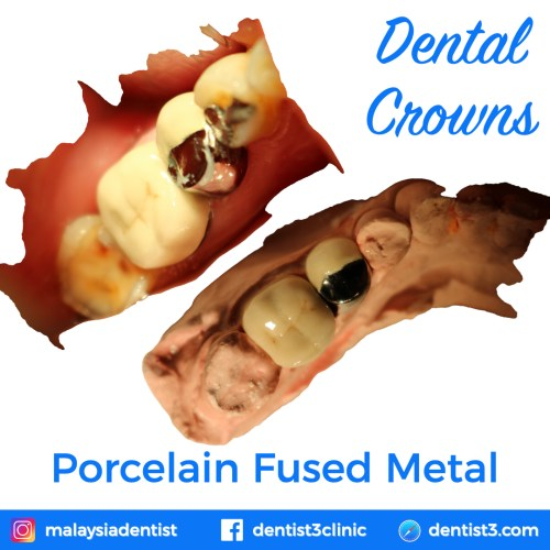 porcelain-fused-metal-crowns