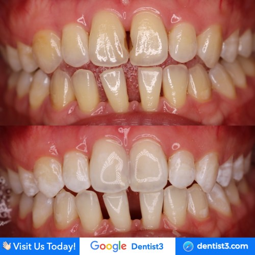 whiteing+anterior=composite