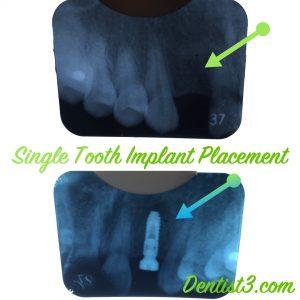 1st-implant-placement-dentist3